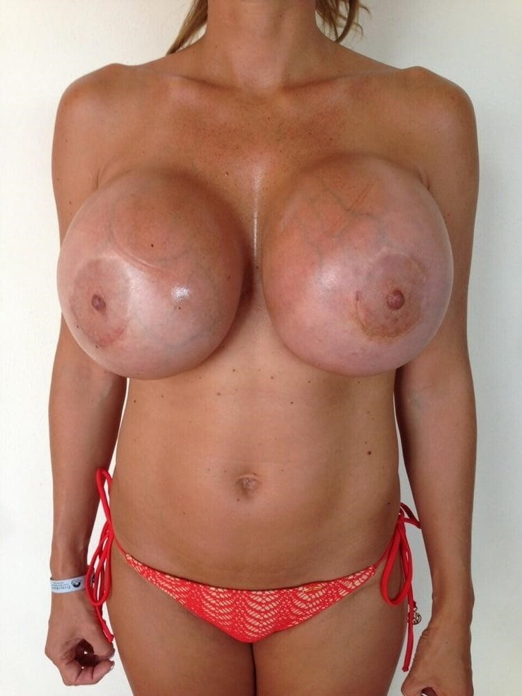 Breast implants cheap near me-5849