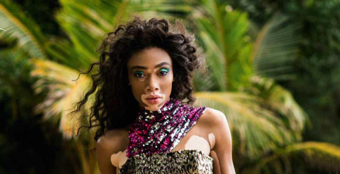 Winnie Harlow by Gilles Bensimon - UK Elle May 2018