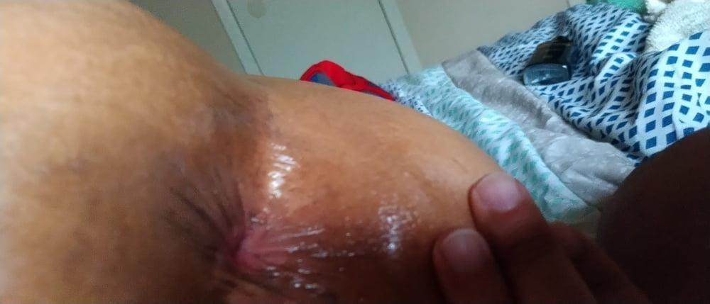Light bleeding after anal-8654