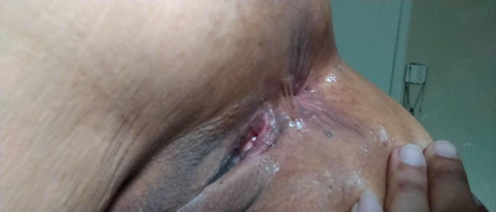 Light bleeding after anal-7304