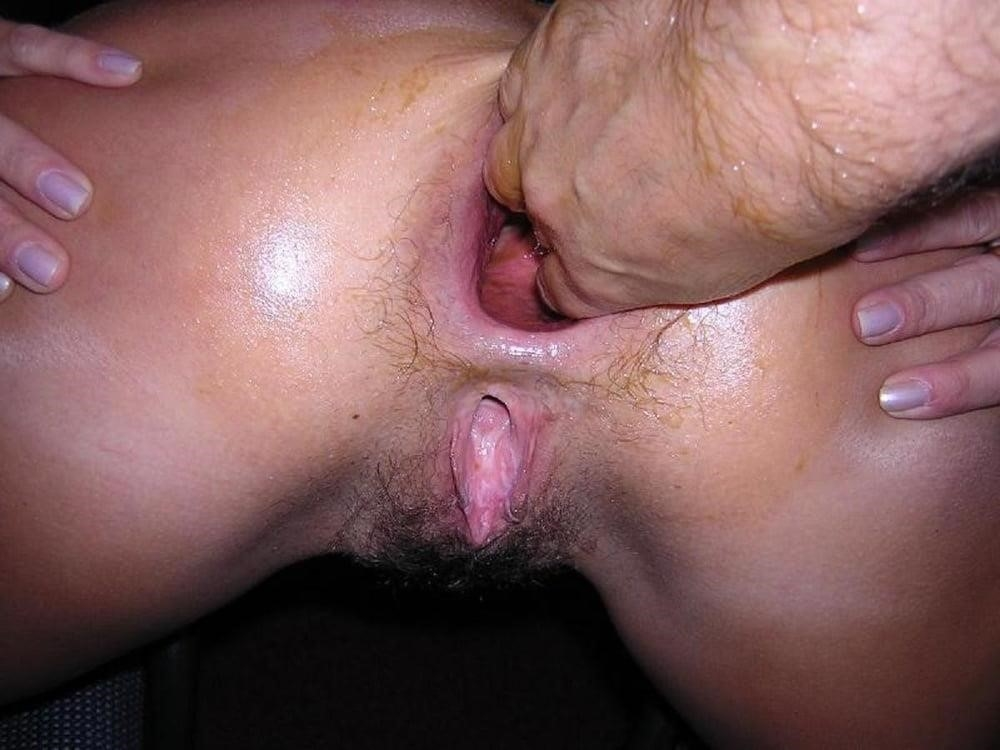 Fisting anal pics-6597