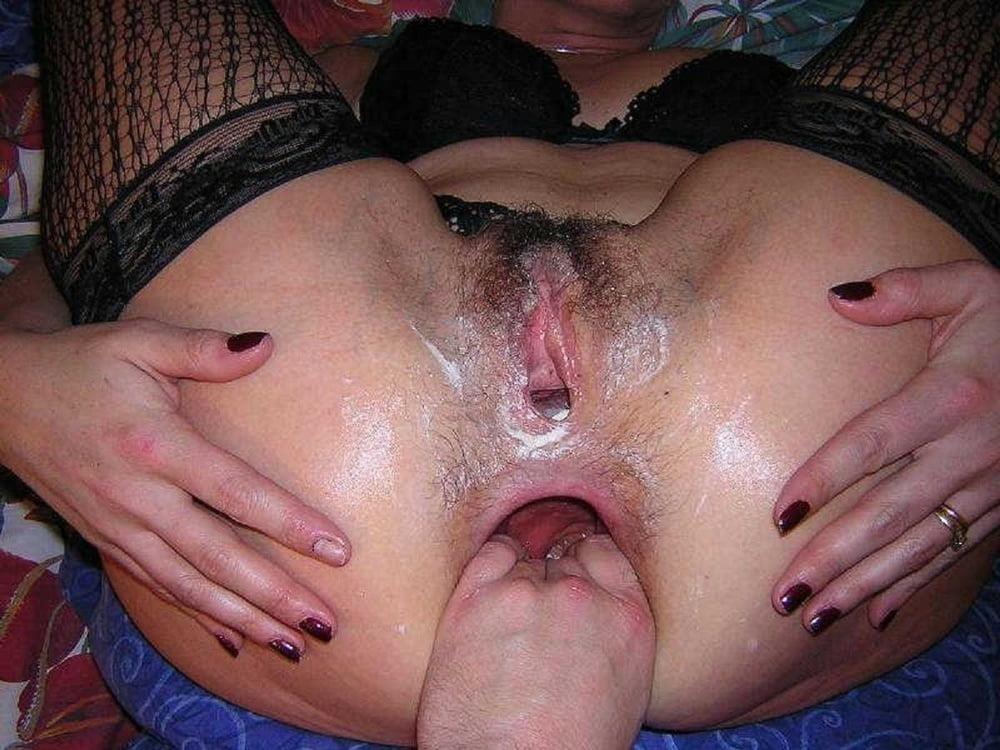 Fisting anal pics-4429