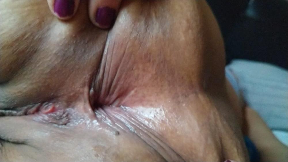 Light bleeding after anal-5339