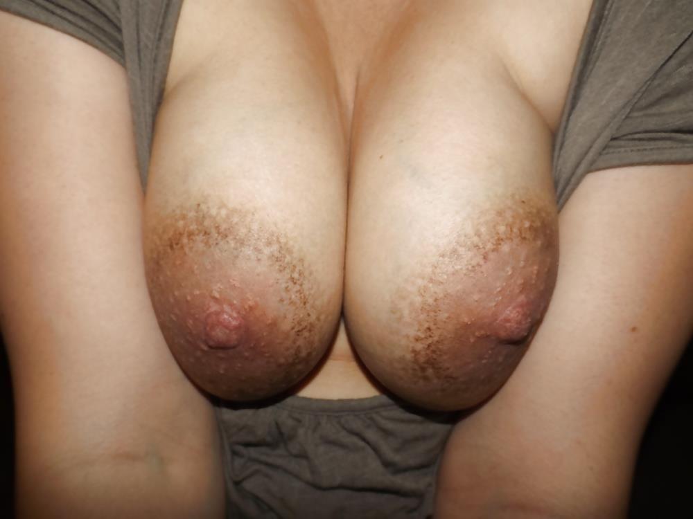 Xnxx boobs anal-1974