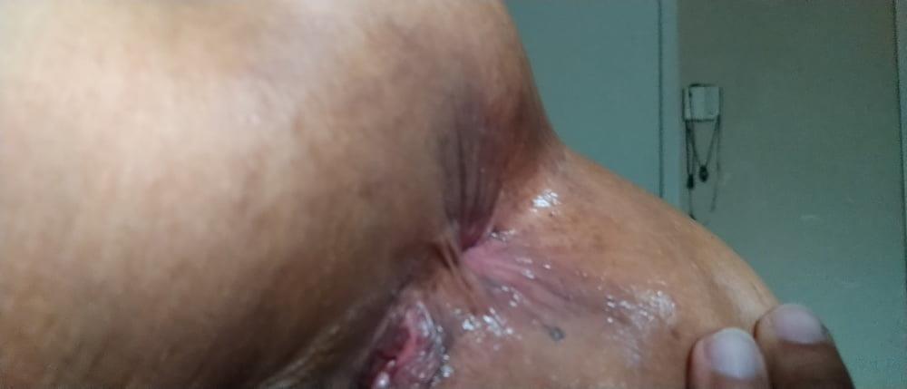 Light bleeding after anal-9126