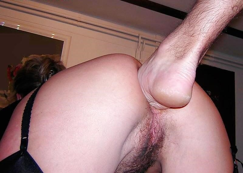 Anal fisting photos-5039
