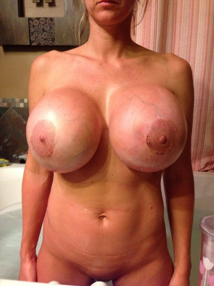 Breast implants cheap near me-7145