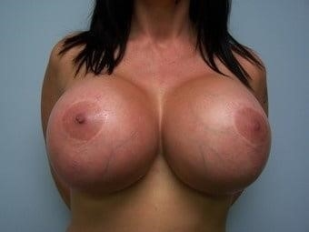 Breast implants cheap near me-9932